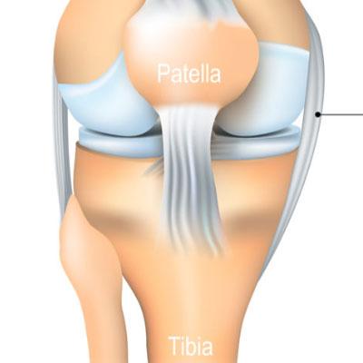 Surgery for Patellar dislocation /mal alignment